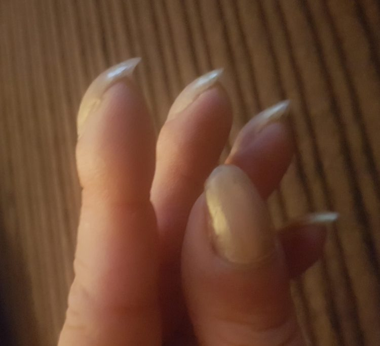 Gran\'s shock as \'ugly\' nails turn out to be \'life-saving\' warning ...