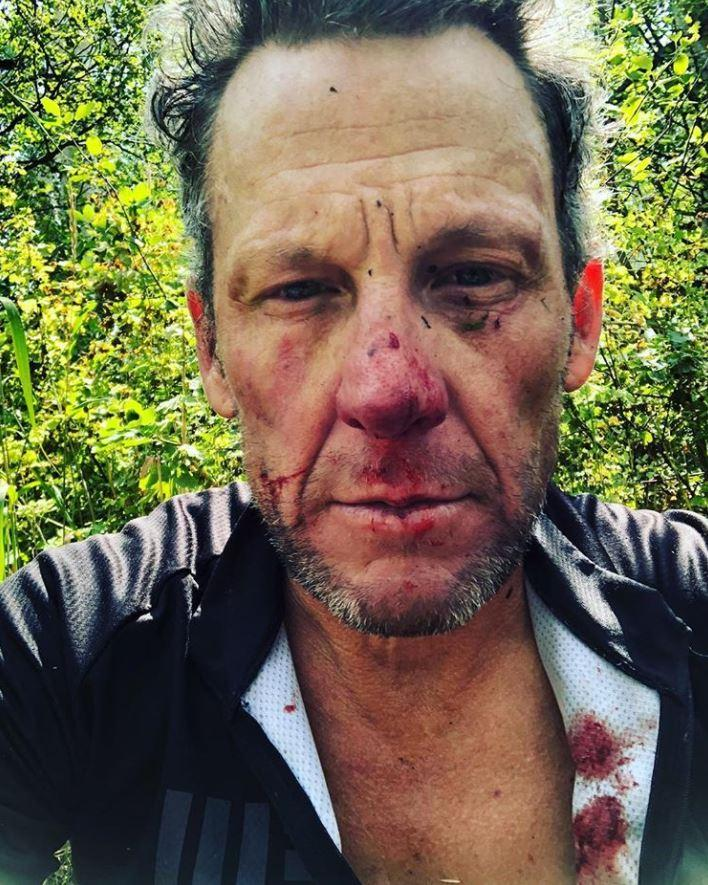 Lance Armstrong was left bloodied after a fall while cycling in Colorado