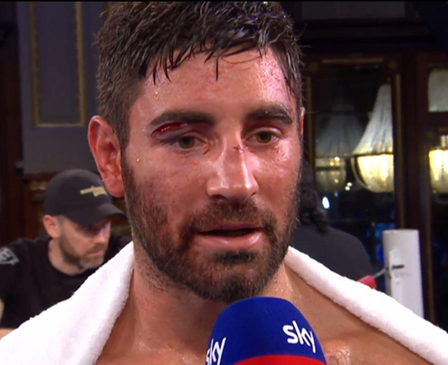 Buglioni had been hoping the win the Inter-Continental light-heavyweight title