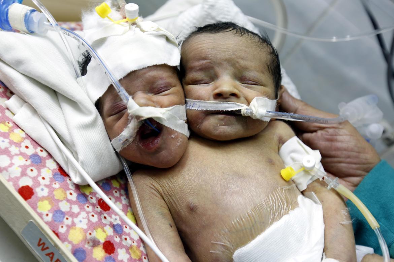 Conjoined twins Abdul-Khaliq and Abdul-Rahim were born in war-torn Yemen in January