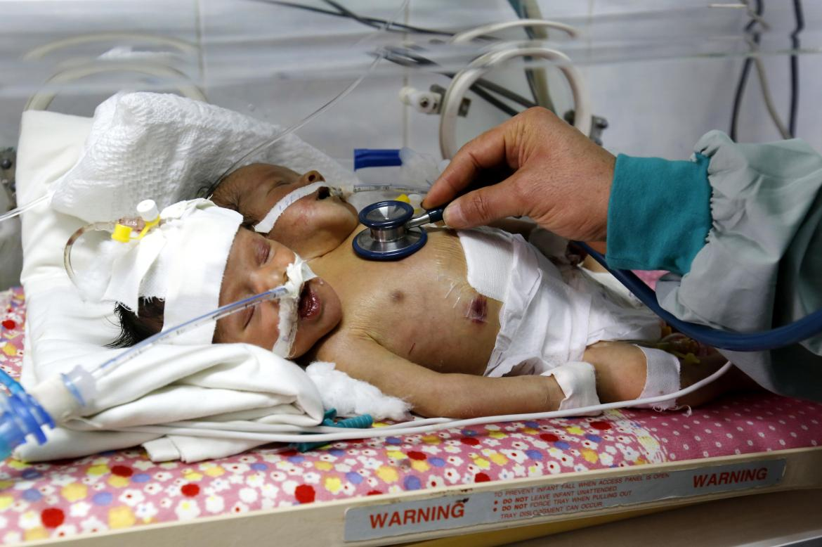 The twins spent their first few days in an incubator in intensive care at Al-Thawra hospital and are said to be fairly stable so far