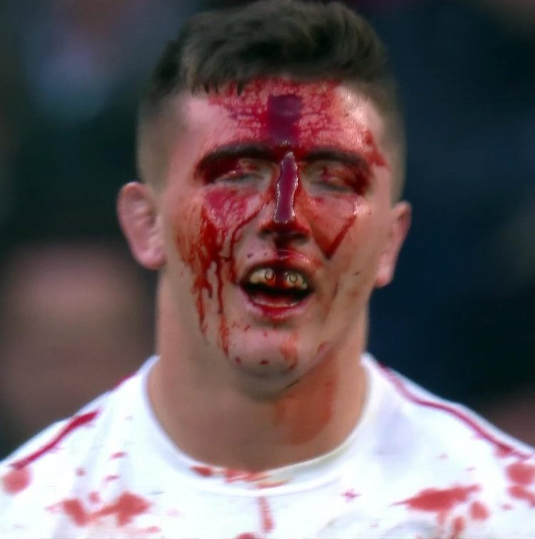 England flanker Tom Curry split his forehead open in an accidental clash with Damian Penaud's chin