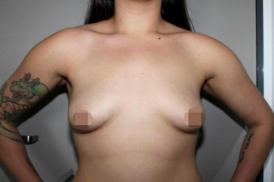 The 23-year-old wanted to boost her 34C chest to a DD