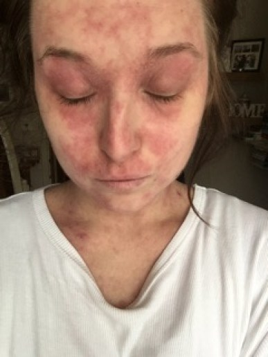 Megan suffered with terrible eczema on her face