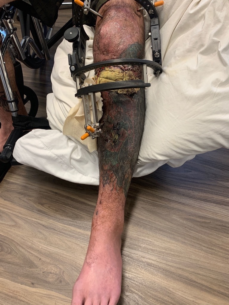 The fighter needed extensive surgery to reattach the lower part of his leg