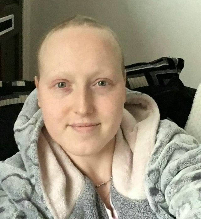 Sarah unnecessarily went through chemotherapy which caused her to lose her hair