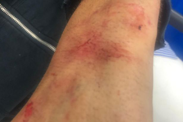 This is the bruising the 50-year-old also suffered