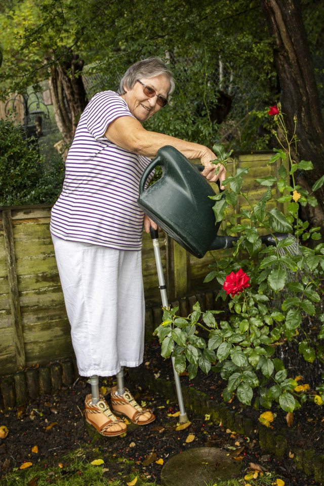 Sue was bitten while she was gardening at her home in Wiltshire