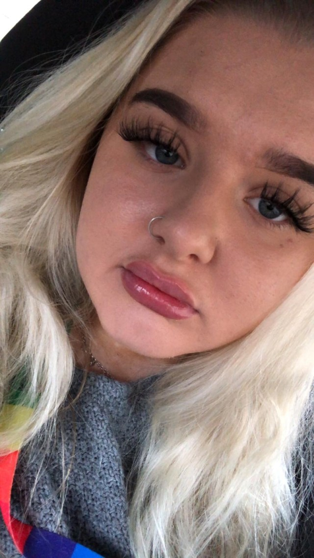 Now 22, Anna says she took the procedure because she'd been insecure about her lips 'forever'