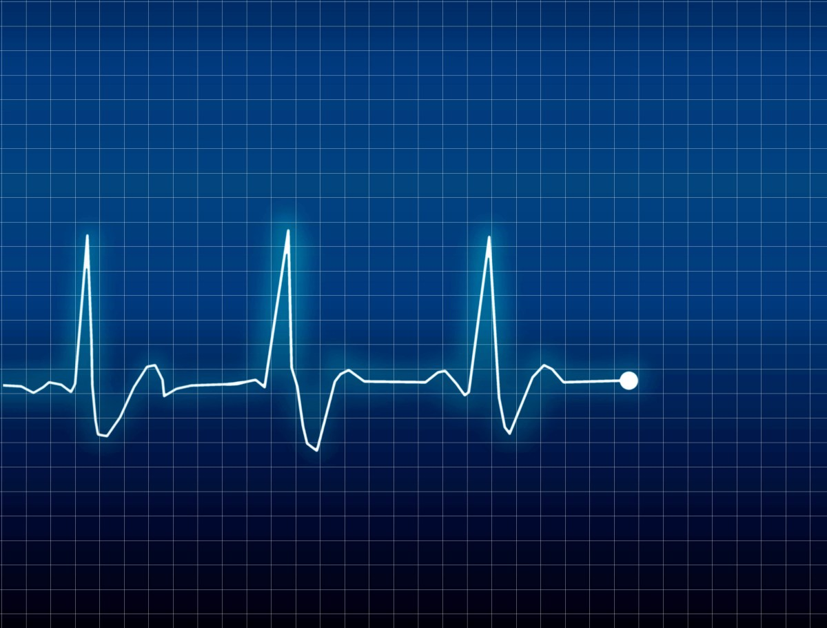 Severe exhaustion increases the risk of atrial fibrillation, an irregular heartbeat, which in turn makes stroke and heart failure more risky.