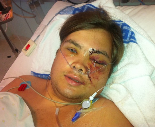 Tarjei Jensen Bech was left with extensive injuries after being shot and falling into the water