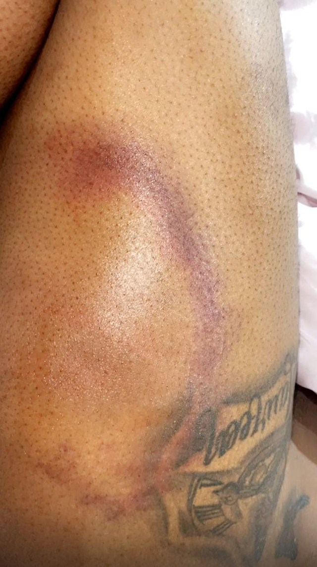 She shared horrifying photos of the bruises on her thighs
