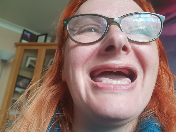 Alyson only has bottom teeth and is unable to find dentures that fit