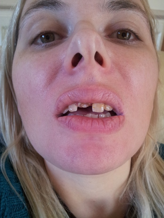 Before the surgery Alyson had a few teeth yet - a consultant is said to have told her to have them all removed