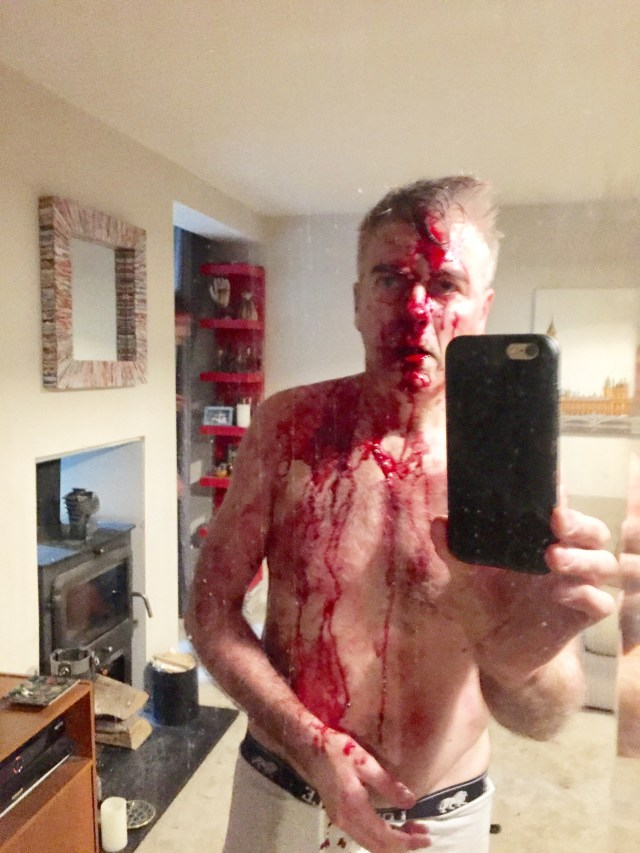 Married art First Sight star David Pugh was left covered in blood after a machete raid at his West Mids home