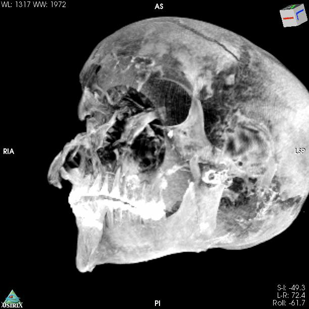 A CT scan of the mummy revealed several wounds including a big slice on the forehead