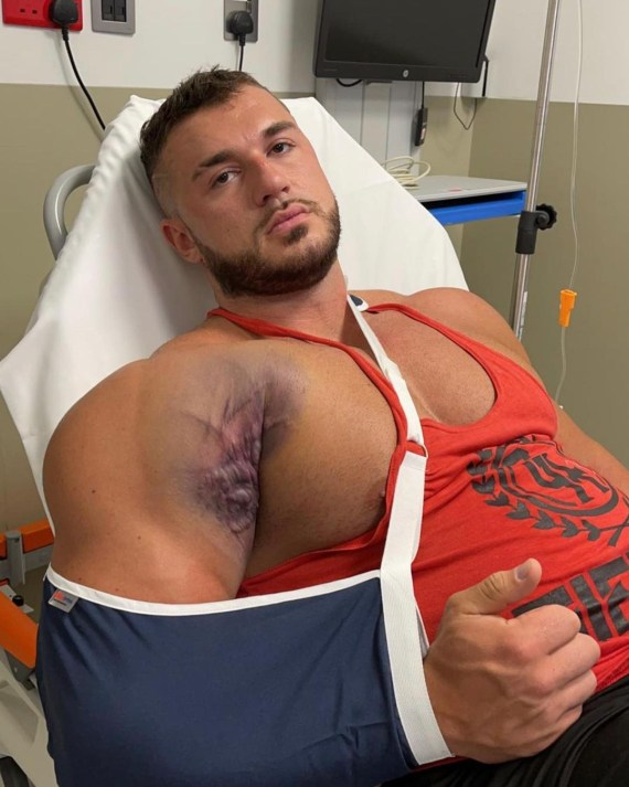 Ryan 'Big Rig' Crowley hopes he can come back from this gruesome injury