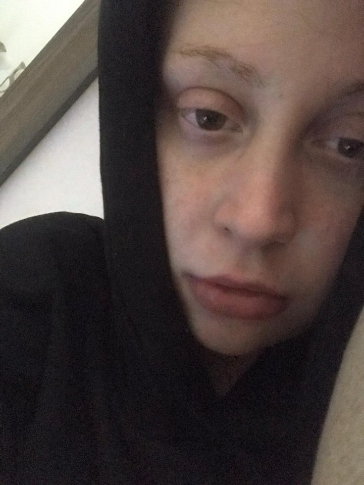 Sacha during her illness, in which she said her hair loss was the biggest concern for her