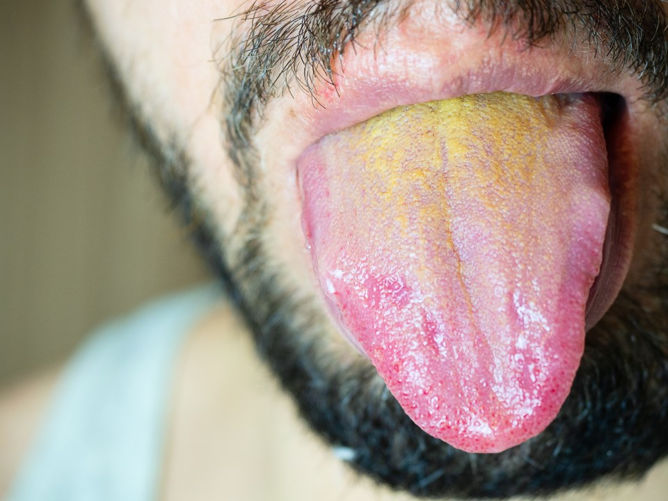 People can have problems with a build up of yellow gunge on their tongue