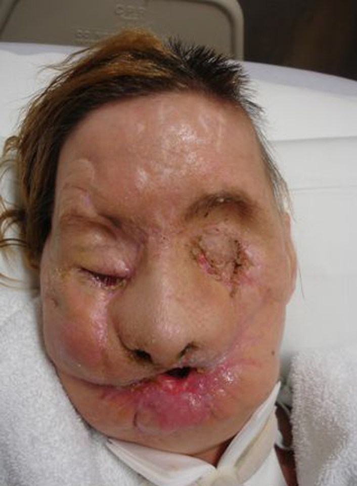 Charla Nash was savagely mauled by her friend's pet chimpanzee