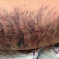 Tattoo Pimples - Don't Freak Out!!