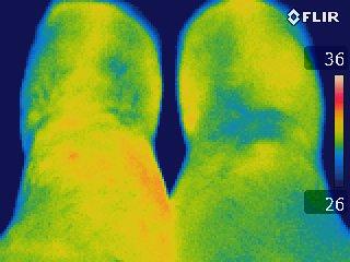 Thermographie d'un genou accidenté