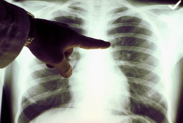 """Patients using the ACEI drugs """"are up to 31 per cent more likely to develop lung cancer"""""""