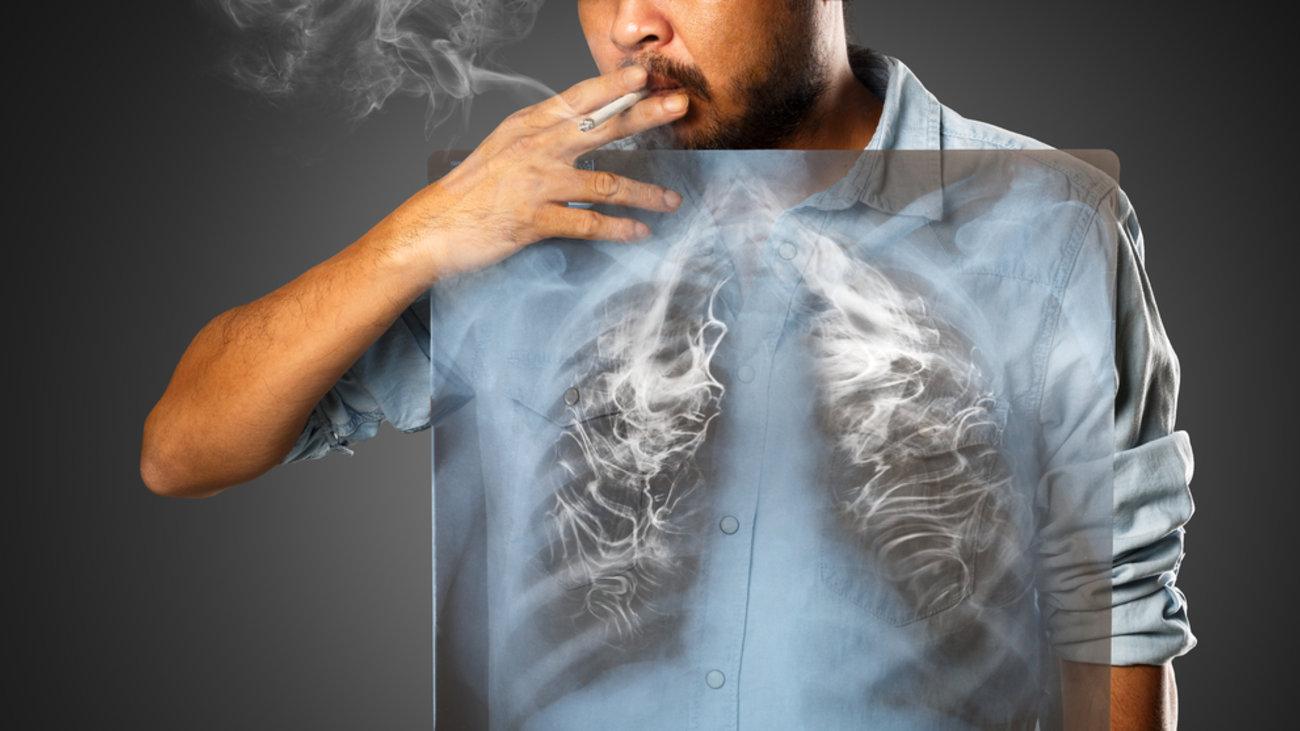 Αποτέλεσμα εικόνας για κάπνισμα