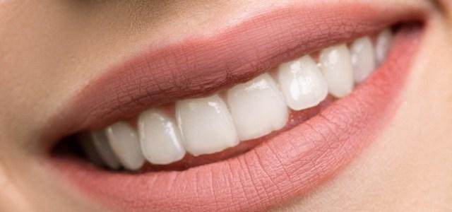 Dinți albi versus dinți galbeni. 10 sfaturi pentru un zâmbet strălucitor!