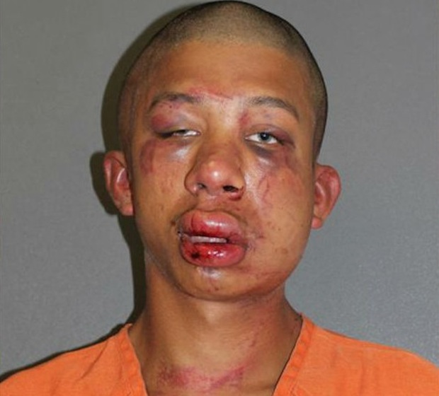 Raymond Frolander, the 18-year-old man beaten by a father after the dad claimed he saw him abusing his child. (Photo Credit: Volusia County Jail)