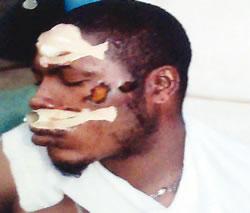The battered barman, Simeon Tenebe (Photo Credit: Punch)