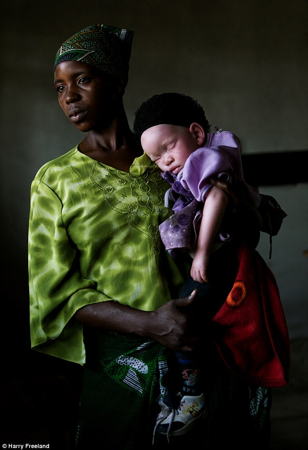 Tanzania's albino population is being hunted down by people who want to turn their body parts into potions and charms. (Photo Credit: Harry Freeland)