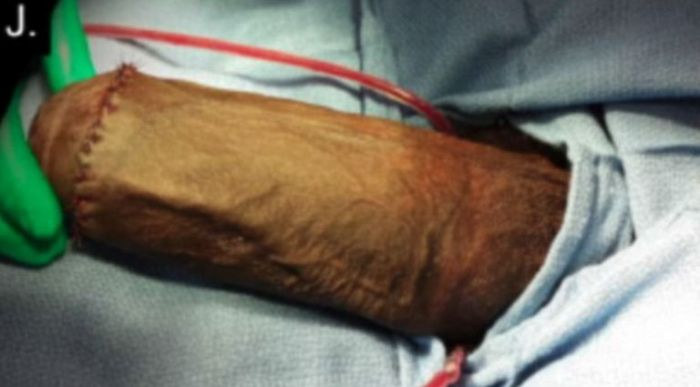 A after picture of a 17-year-old boy in Florida who underwent the first penis reduction surgery after his penis  grew too large and prevented him from having sex. (Photo Credit: Journal of Sexual Medicine)