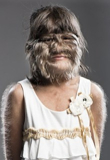 Supatra Sasuphan is currently the world's hairiest girl in the woro Guinness World Book of Records. (Photo Credit: Weirdnews.about.com)