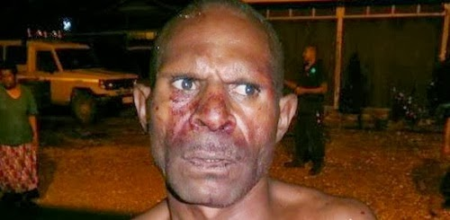 Cannibal father was caught eating his 3-year-old daughter alive in Papua, New Guinea. (Photo Credit: PNG Post Courier)