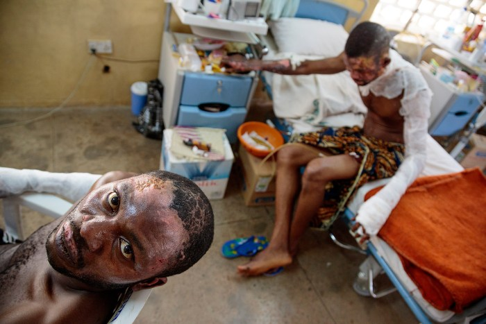 At the National Orthopedic Hospital, Christian survivors of a Boko Haram bomb attack on a bus depot on March 18, 2013 get free care, in Kano, Nigeria on March 29, 2013. Over 100 people died and scores were injured. | Ed Kashi