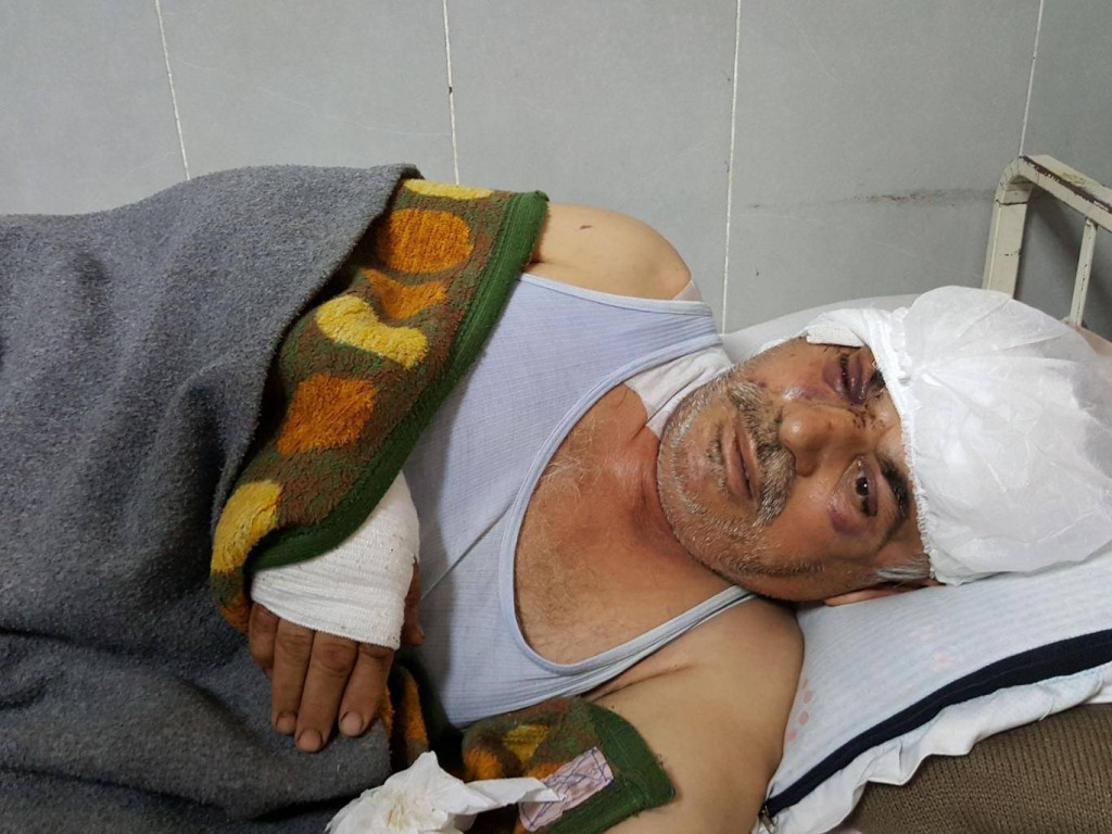 Mohamed Hussein, a 58-year-old Kurdish farmer, lies in the Afrin hospital, wounded in the head and eye after his home was bombed by a Turkish aircraft on the second night of the attack Yara Ismail. Click to enlarge
