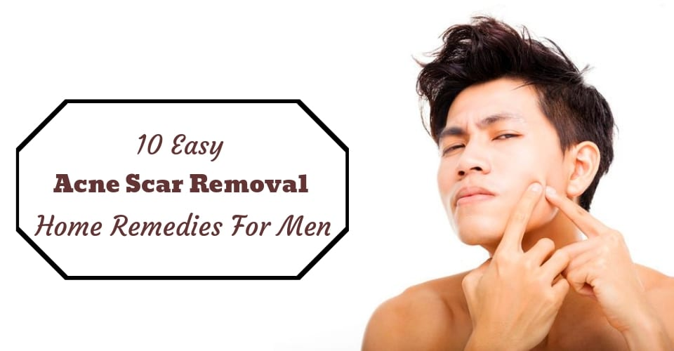 10 Easy Acne Scar Removal Home Remedies For Men