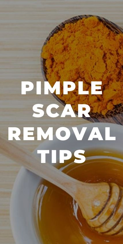 PIMPLE SCAR REMOVAL TIPS