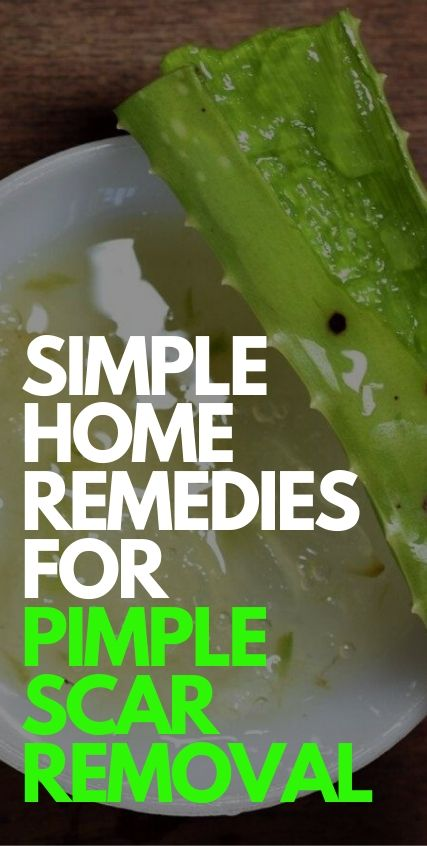 Simple Pimple Scar Removal Tips for Men