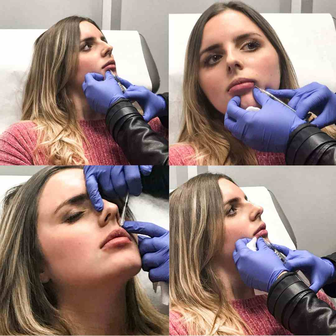 lip injections, lip injections vancouver, lip injections vancouver cost, lip injections before and after - Permanent Lip Injections: My Experience by Vancouver beauty blogger The Urban Umbrella