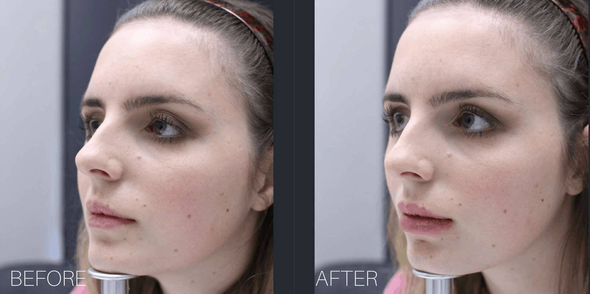 My Lip Injections Experience + FAQ