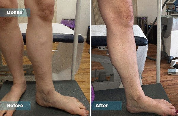 Donna - Varicose Vein Treatment
