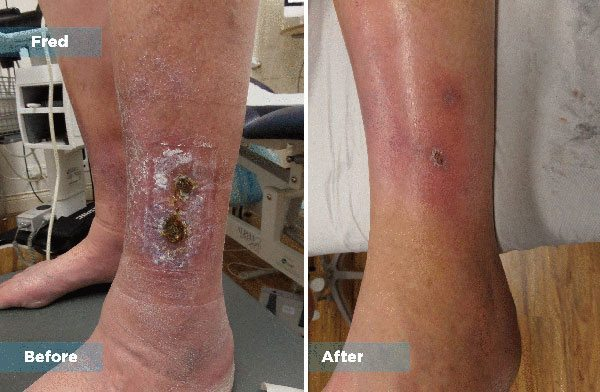 Fred - Varicose Vein Treatment
