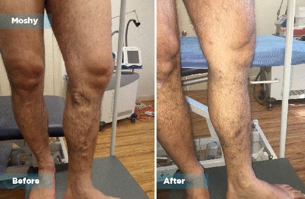 Moshy - Varicose Vein Treatment