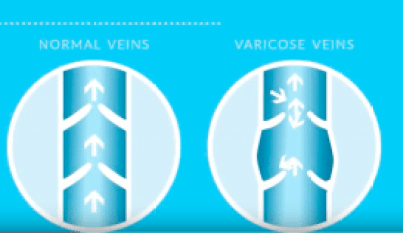What causes varicose veins