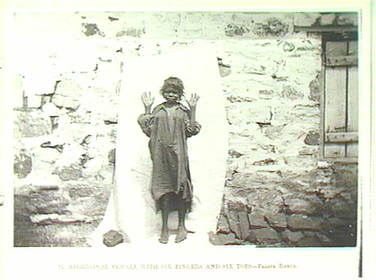 Fraser Range Aboriginal Woman 6 Fingers -Toes by Helms 1891