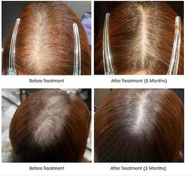 Follicle Hair Hair Loss Clinic Singapore