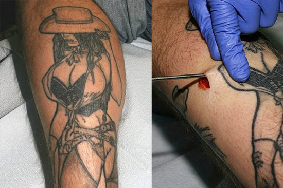 silicone implants for tattoo