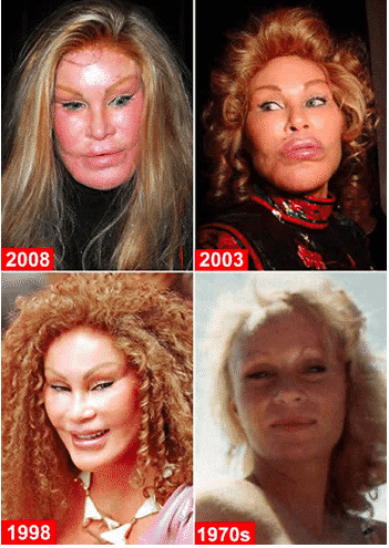 Plastic Surgery Gone Bad and Jocelyn Wildenstein